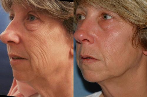 Trẻ hóa da vùng mí mắt với công nghệ Thermage