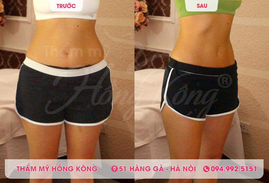 Khách hàng trước và sau khi giảm béo bụng bằng công nghệ Cryolipolysis