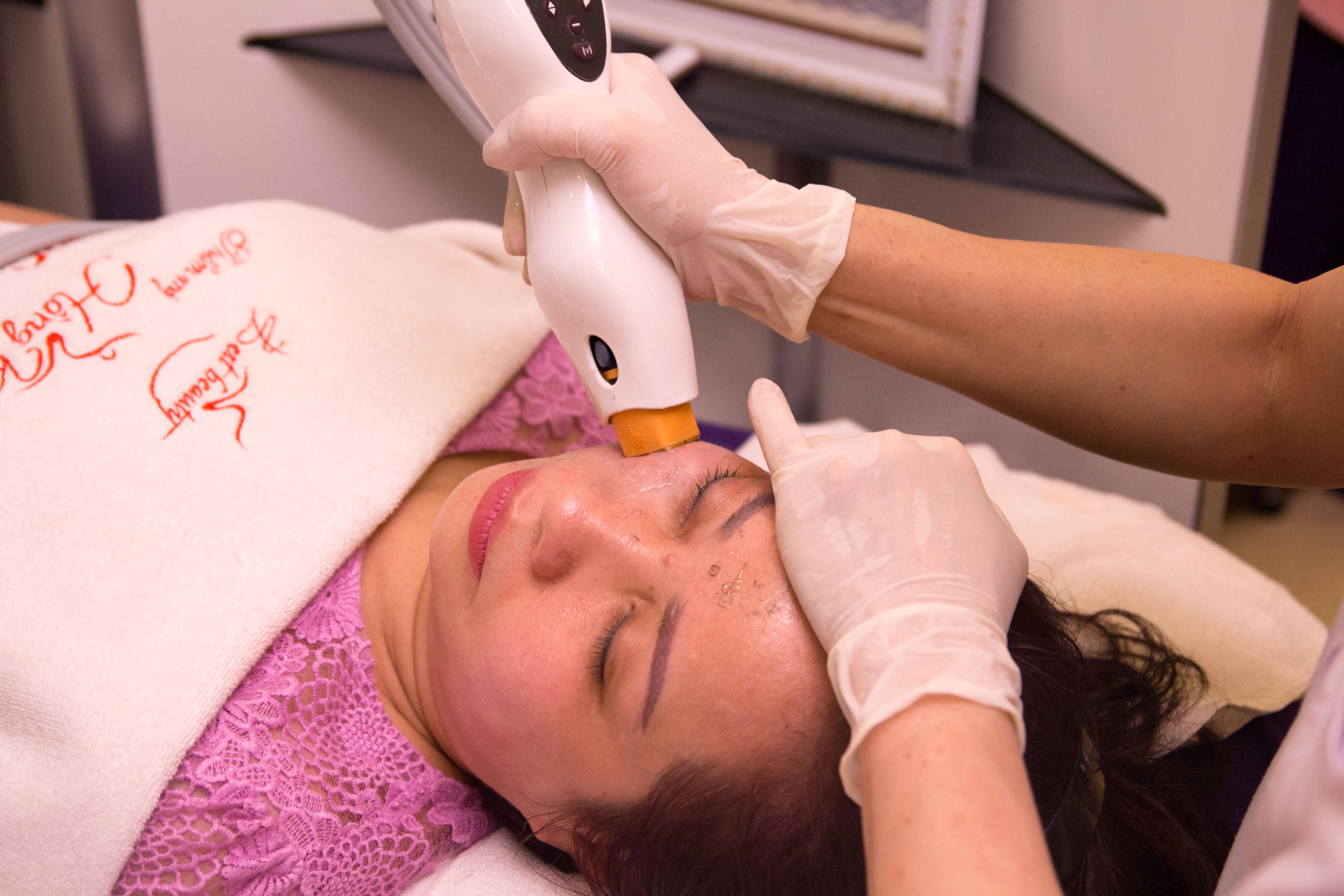 Thermage xóa mờ nếp nhăn chỉ với 1 lần điều trị duy nhất trong 60 – 90 phút.