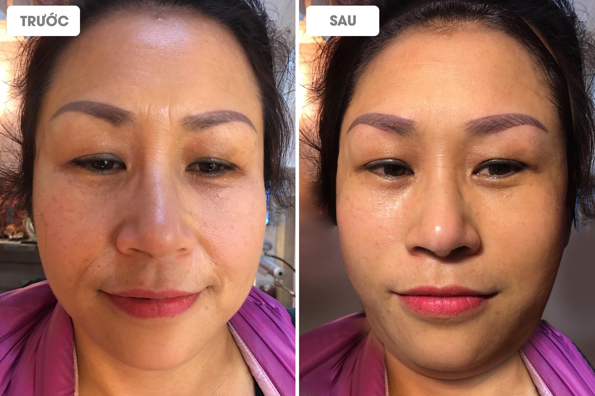Khách hàng trước và sau khi xóa nhăn vùng miệng