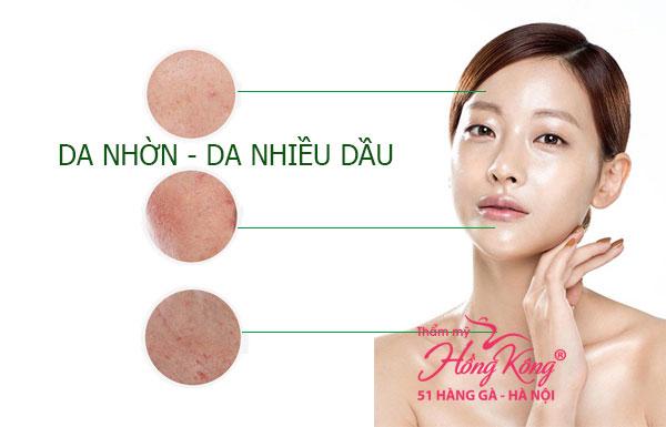 Da nhờn thường đi kèm với tình trạng lỗ chân lông to, da mặt luôn bóng dầu