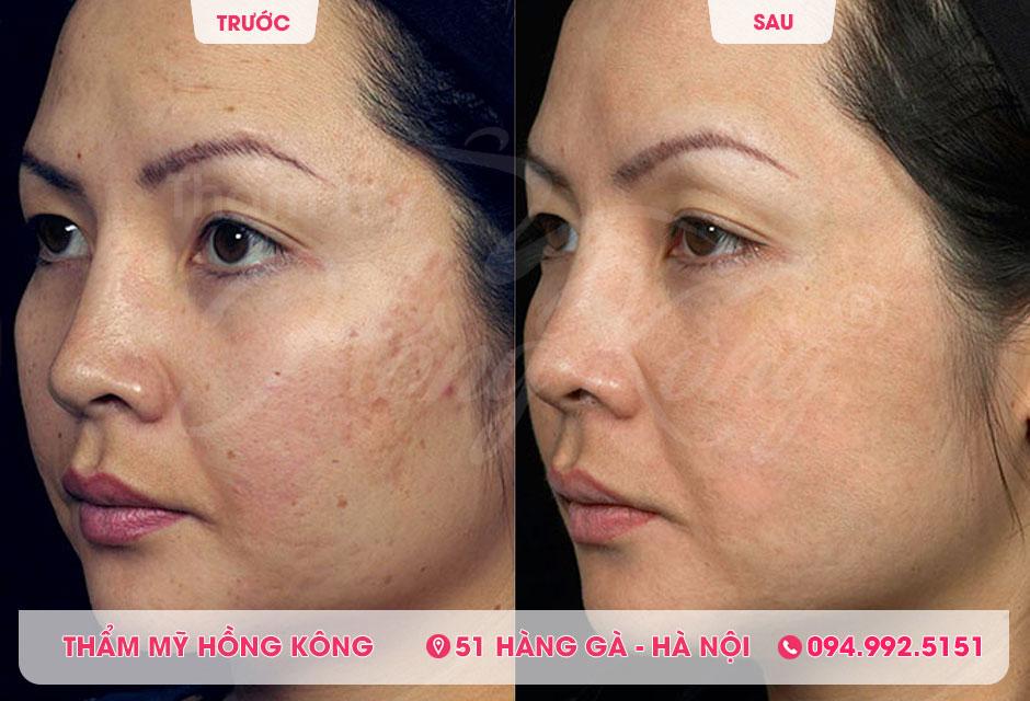 Khách hàng trước và sau khi điều trị sẹo rỗ, sẹo lõm