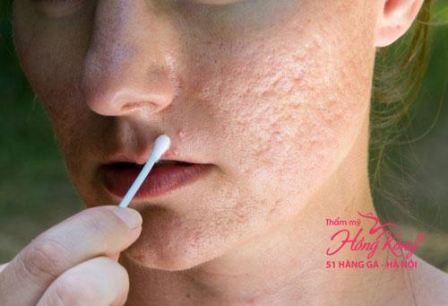 Sẹo lõm, sẹo rỗ ở mặt là dạng tổn thương da rất nặng do sự biến dạng cấu trúc biểu bì bên trong các mô sợi collagen bị đứt gãy
