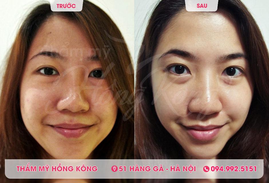 Khách hàng trước và sau khi tẩy da chết, chăm sóc da tại Thẩm mỹ Hồng Kông