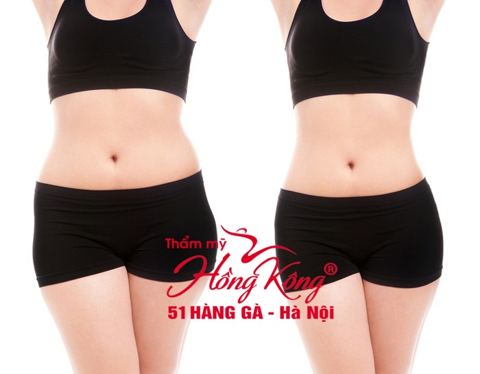 giai-the-chat-beo-tam-biet-mo-thua-voi-cryolipolysis5