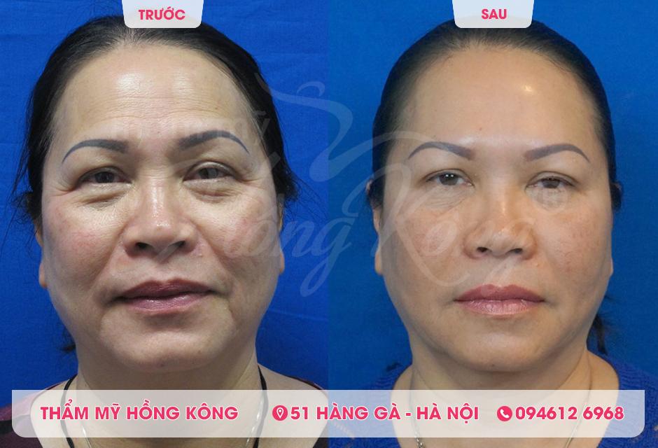 Khách hàng trước và sau khi điều trị bằng Thermage