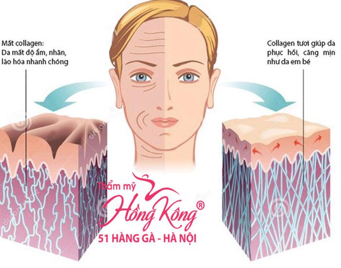 thermage-suc-song-cho-lan-da-lao-hoa