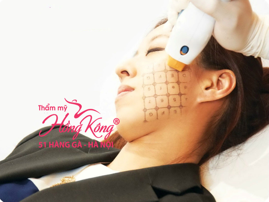thermage2015-buoc-dot-pha-trong-cong-nghe-tre-hoa-da3