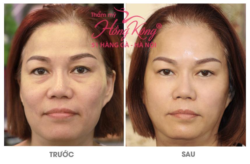 nang-co-tre-hoa-da-ultherapy-3