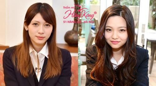 Ở châu Á hiện nay chỉ có Nhật Bản thích vẻ đẹp của khuôn mặt tròn bầu bĩnh. Hai nữ sinh Yamamoto (trái) và Sakurai Yuu (phải) hiện đang là gương mặt nổi tiếng và được yêu thích ở đây một phần bởi họ sở hữu đặc điểm khuôn mặt này.