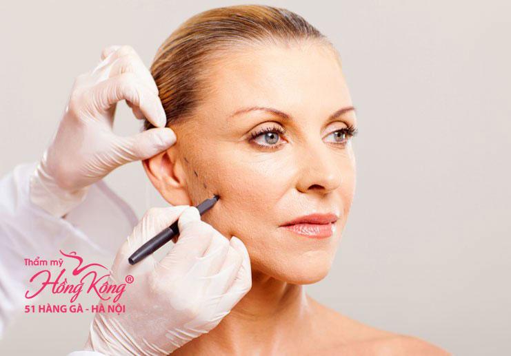 Phẫu thuật thẩm mỹ căng da là phương pháp giúp cải thiện phần da nhăn nheo, chảy xệ do quá trình lão hóa gây ra