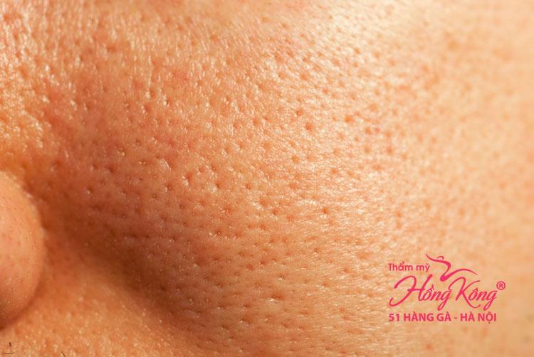 Lỗ chân lông to là một trong những dấu hiệu lão hóa da