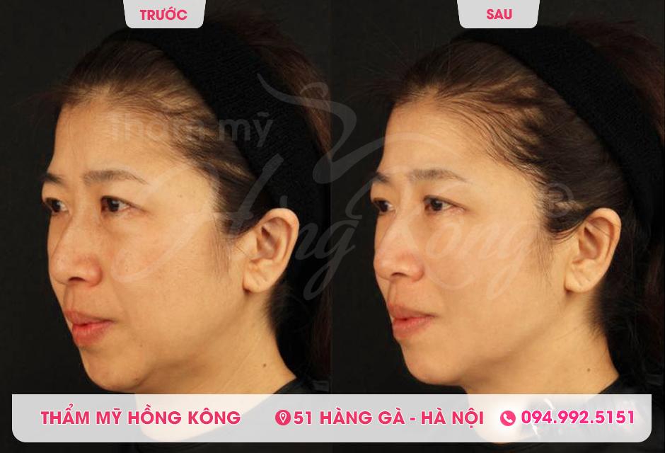 Khách hàng trước và sau khi giảm béo mặt bằng Ultherapy