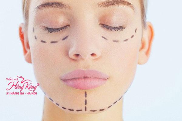 Gọt mặt là phương pháp phẫu thuật cắt gọt các phần xương mặt