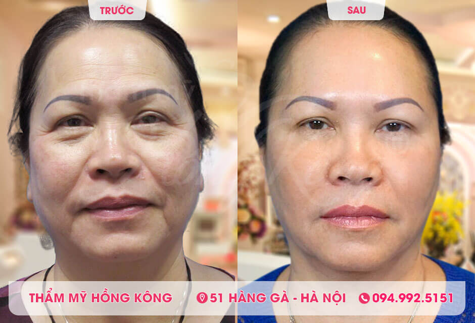 Khách hàng trước và sau khi căng da vùng mắt tại Thẩm mỹ Hồng Kông