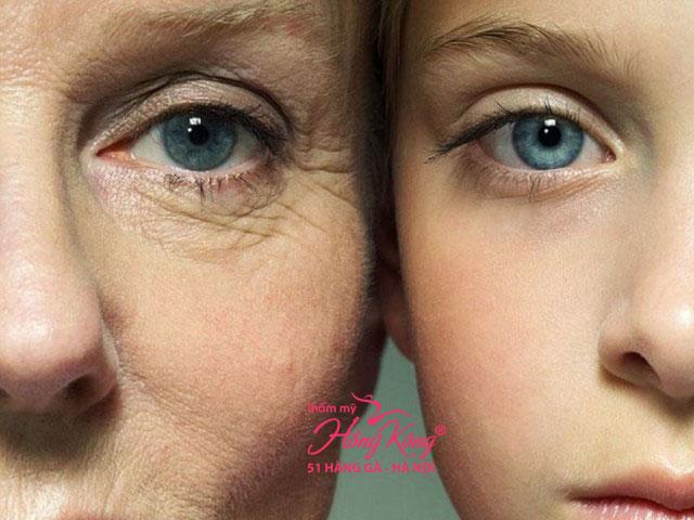 Nếp nhăn vùng mắt khiến bạn già đi cả chục tuổi