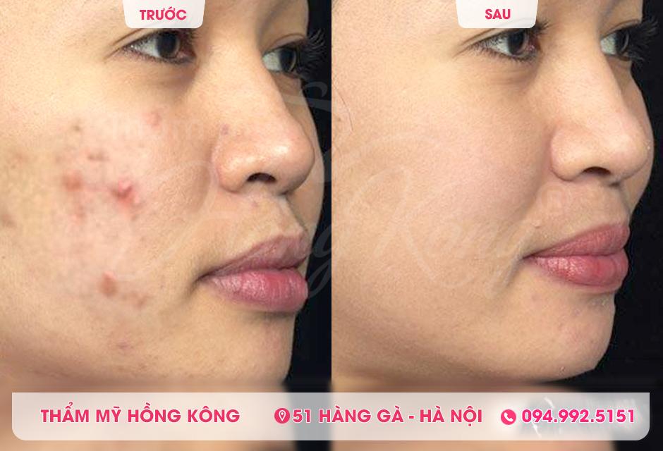 Khach-hang-truoc-va-sau-khi-tri-mun-bang-cong-nghe-the-record-618-tai-tham-my-hong-kong