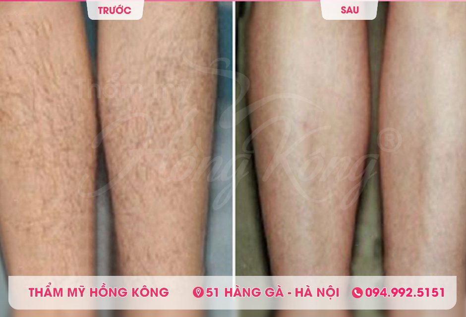 Khách hàng trước và sau khi triệt lông bằng The Record 618 tại Thẩm mỹ Hồng Kông