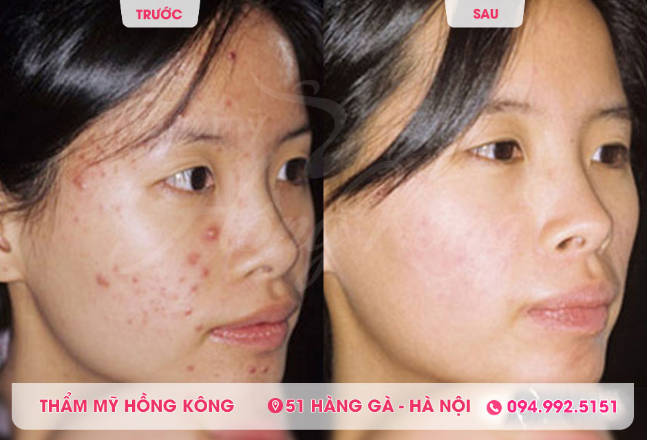 Anh-truoc-va-sau-khi-tri-mun-bang-cong-nghe-the-record 618-tai-tham-my-hong-kong