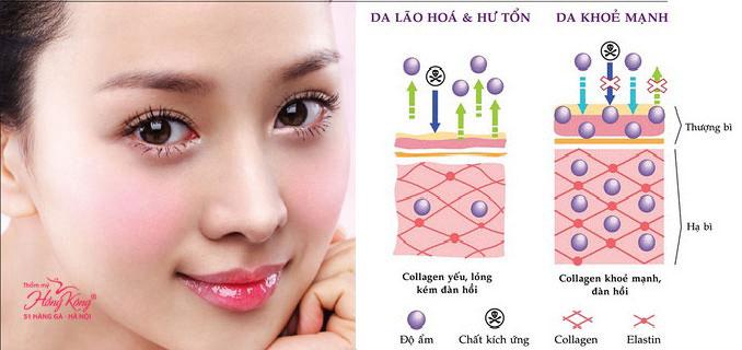 Năng lượng sóng RF kích thích tái tạo và tăng sinh collagen