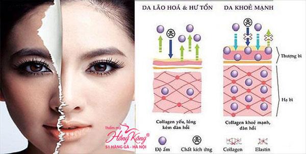 Sóng RF của Thermage có khả năng kích thích tái tạo và tăng sinh collagen, giúp trẻ hóa da nhanh chóng