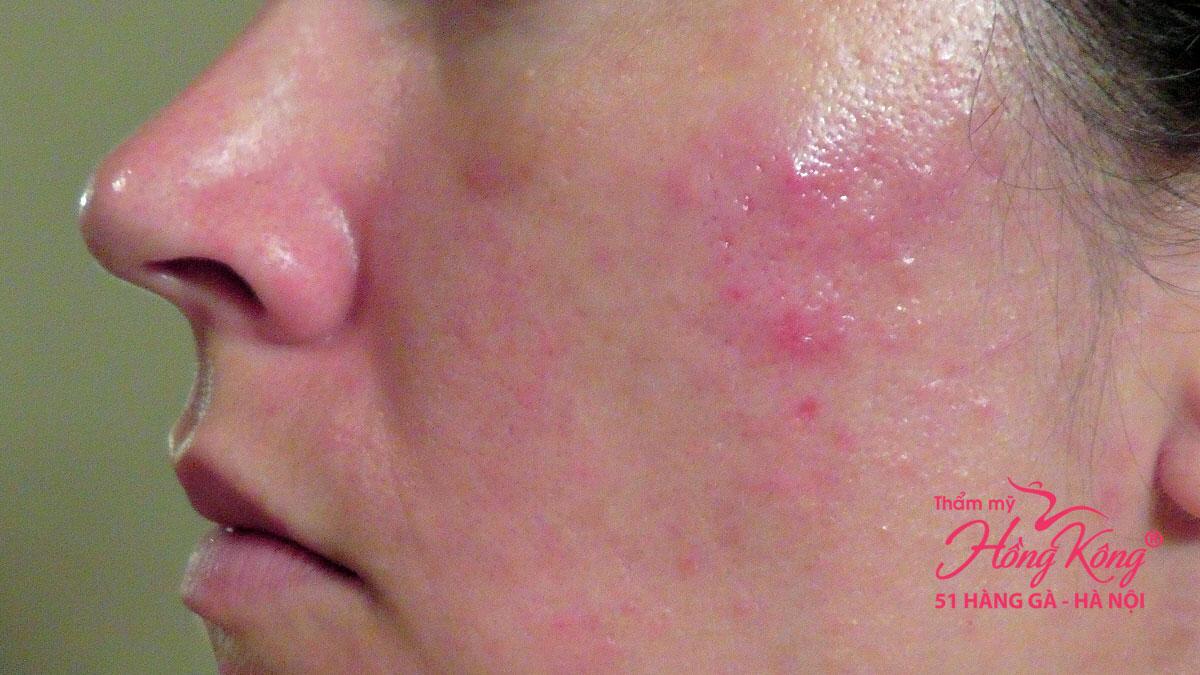 Dị ứng da do sử dụng gel lột mụn trôi nổi trên thị trường