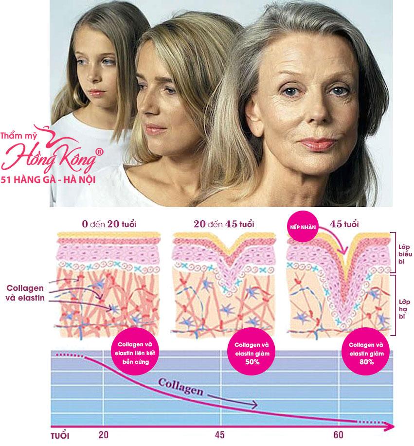 Năng lượng sóng siêu âm hội tụ vi điểm có khả năng kích thích tái tạo collagen - elastin, giúp trẻ hóa làn da