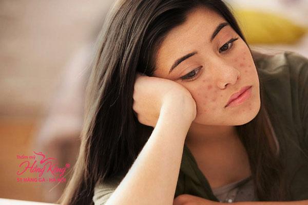 Nhiều chị em tự tàn phá làn da của mình do nặn mụn sai cách