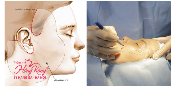 Những rủi ro từ phẫu thuật căng da mặt khiến nhiều người e dè