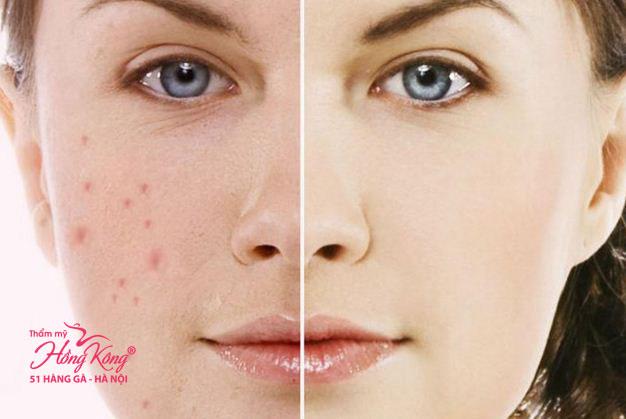 Để níu kéo tuổi xuân, nhiều chị em đã tìm đến các phương pháp thẩm mỹ da mặt