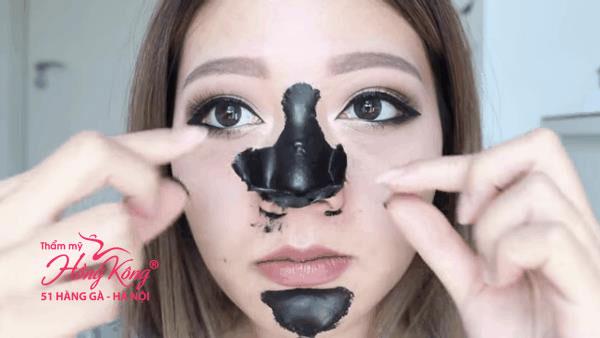 Không nên lạm dụng các miếng dán lột mụn đầu đen