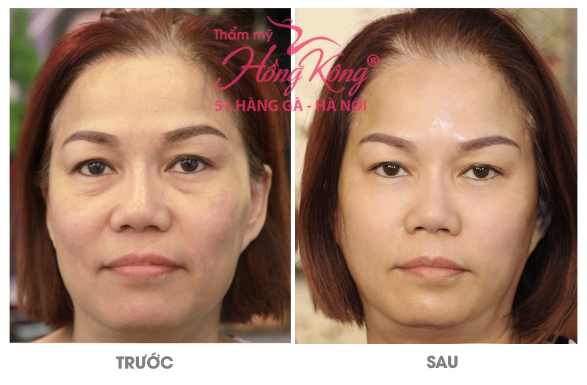 Kết quả của khách hàng trước và sau khi thực hiện trẻ hóa da tại thẩm mỹ Hồng Kông, 51 Hàng Gà