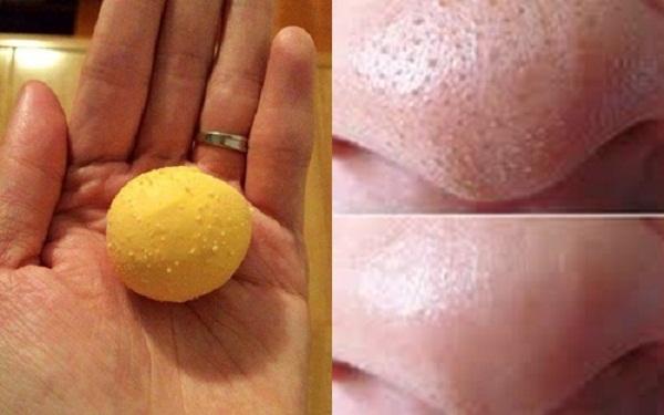 Cách trị mụn bằng trứng gà luộc cực hay