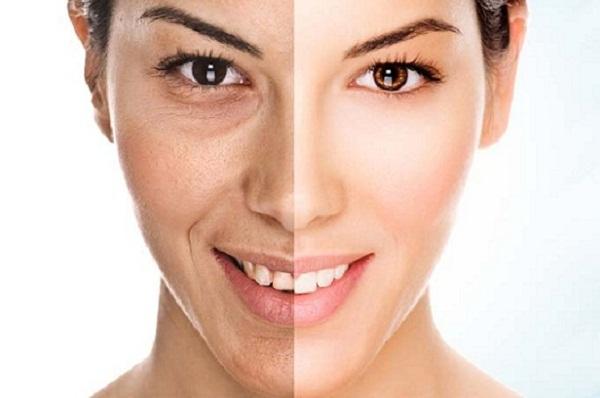 Công nghệ làm căng da mặt có an toàn không
