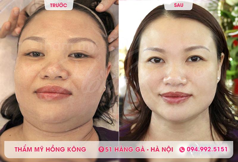 Hình ảnh khách hàng trước và sau khi sử dụng công nghệ căng da mặt bằng Ultherapy