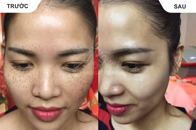 Hình ảnh khách hàng trước và sau khi trị nám tại Thẩm mỹ Hồng Kông