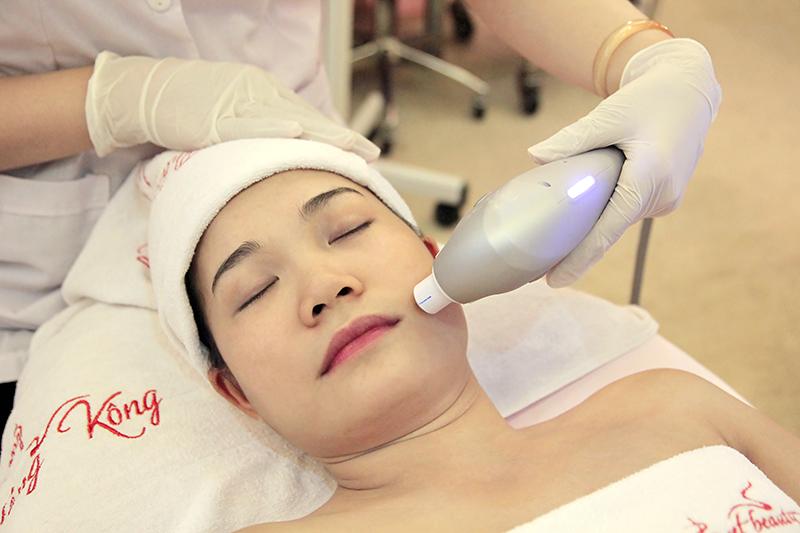 HIFU Ultraformer căng da mặt chỉ sau một lần điều trị