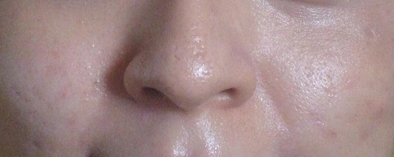 Lỗ chân lông to là dấu hiệu da bị lão hóa