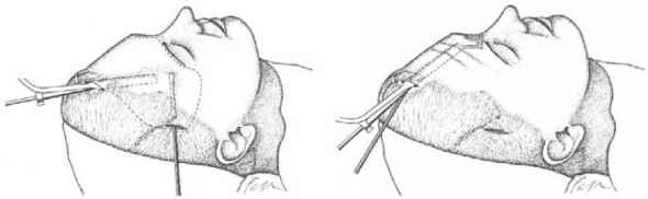 Để phẫu thuật nội soi, bác sĩ sẽ rạch một đường ở chân tóc để đưa dụng cụ nội soi vào bóc tách da