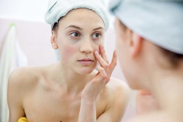 Căng da mạt có ảnh hưởng gì không là lo lắng của nhiều người