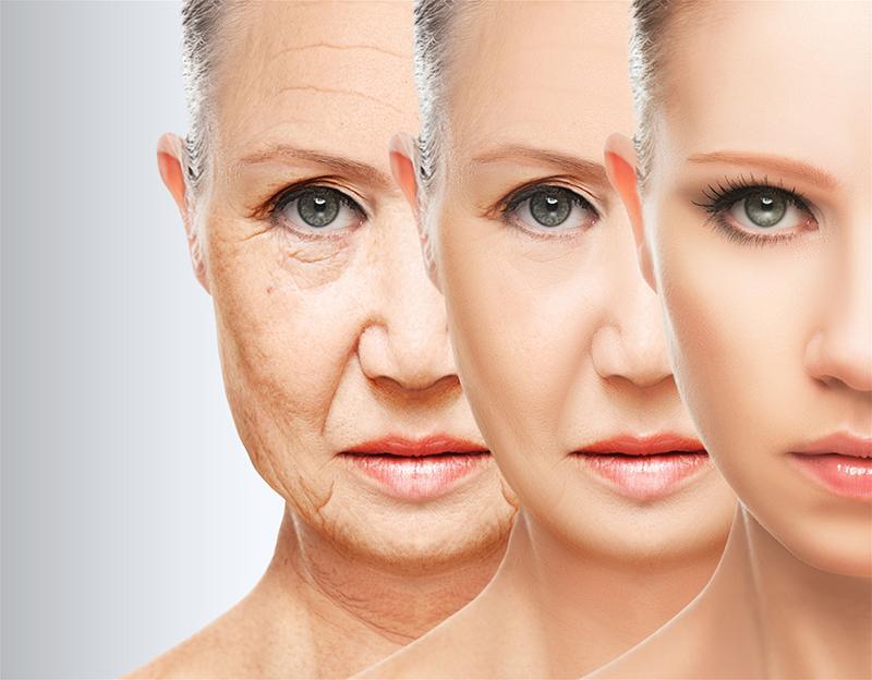 Lượng collagen giảm dần theo thời gian là nguyên nhân khiến da nhăn nheo, chảy xệ