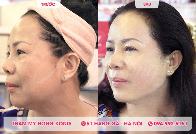 Hình ảnh khách hàng trước và sau khi sử dụng công nghệ Ultherapy tại Thẩm mỹ Hồng Kông 51 Hàng Gà
