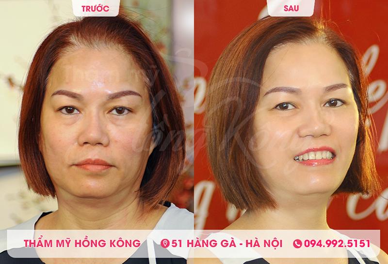 Khách hàng trẻ ra 10 tuổi sau khi căng da mặt tại Thẩm mỹ Hồng Kông 51 Hàng Gà