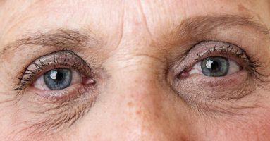 Cách trẻ hóa vùng da quanh mắt hiệu quả nhất