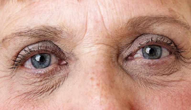 Các nếp nhăn quanh mắt là dấu hiệu dễ nhận biết nhất của lão hóa da