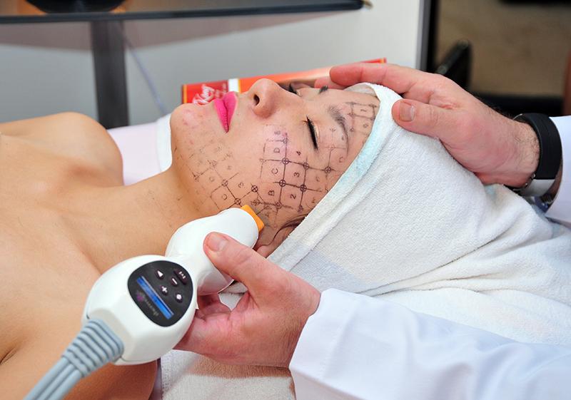 Bác sĩ điều khiển đầu tip của Thermage để điều trị cho khách hàng