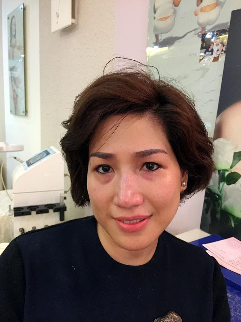 Khách hàng của Thẩm mỹ Hồng Kông 51 Hàng Gà có đôi mắt to, đẹp nhờ xăm mí mắt dưới