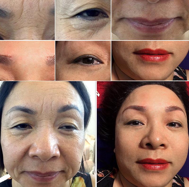 Khách hàng của Thẩm mỹ Hồng Kông 51 Hàng Gà đã trẻ trung hơn nhờ hiệu quả căng da mặt, giảm nếp nhăn của công nghệ Thermage
