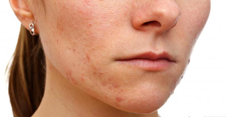 Làn da mụn có thể cải thiện bằng cách sử dụng nha đam