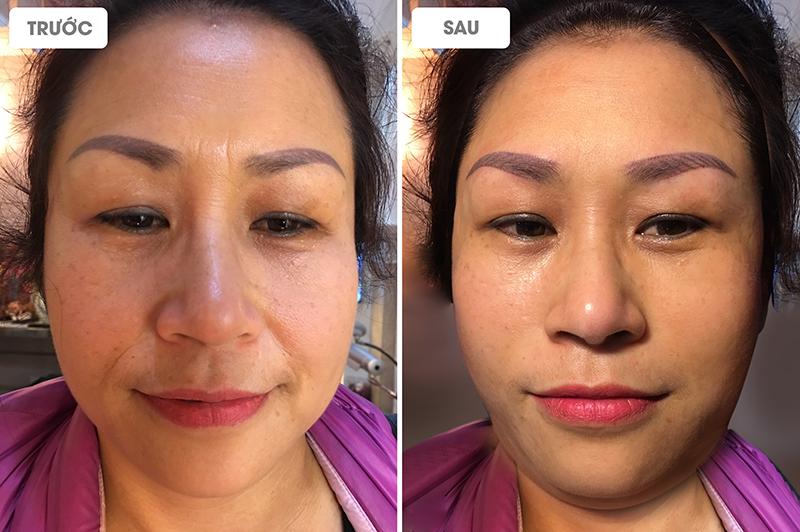 Gương mặt của khách hàng thon gọn hơn, không còn nếp nhăn, không còn chảy xệ nhờ sử dụng công nghệ Ultherapy